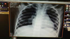 رادیوگرافی ریه بیمار مبتلا به اندوکاردیت عفونی