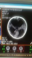 سی تی اسکن مغز بیمار