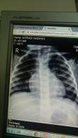 رادیوگرافی ریه بیمار