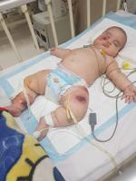 کودک با ضایعات جلدی