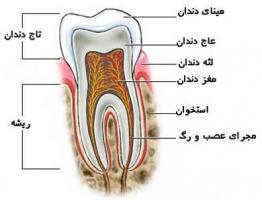 عفونتهای دندانی کودکان را جدی بگیریم