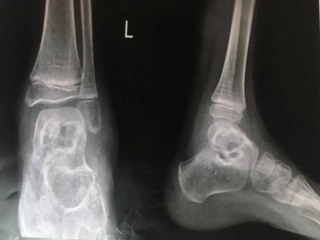 ضایعه در استخوان تالوس
